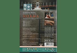 VARIOUS - Norma  - (DVD)